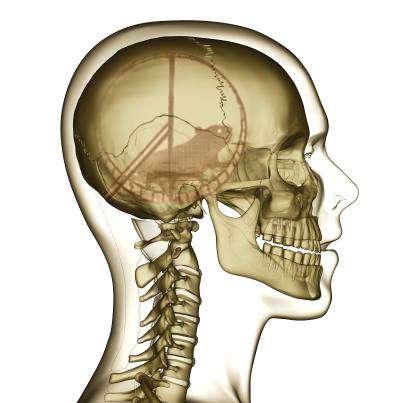 cranio SMM